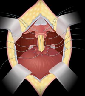 especialista-cancer-de-prostata-campo-grande